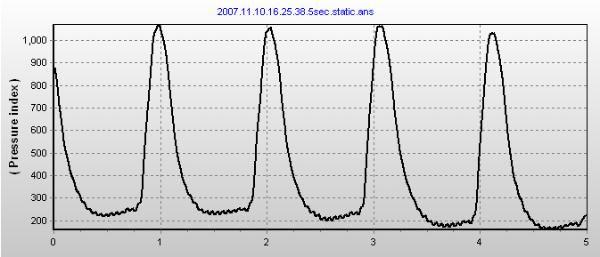 Mitral-valve-prolapse-1-600x257.jpg