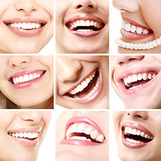 Perfect smiles. Collection of beautiful