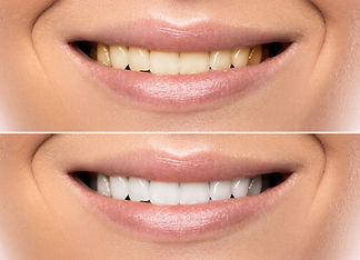 Close up of female mouth. Comparison aft