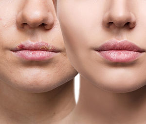 Female lips with herpes sore before and