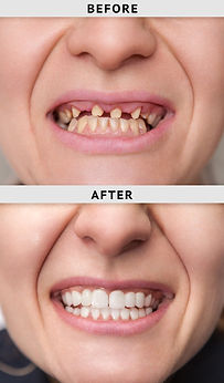 female smile after and before dental cro