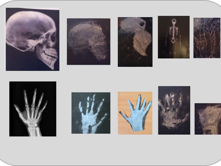 CAIRB Y3-6 X-ray Chalk Skeletons