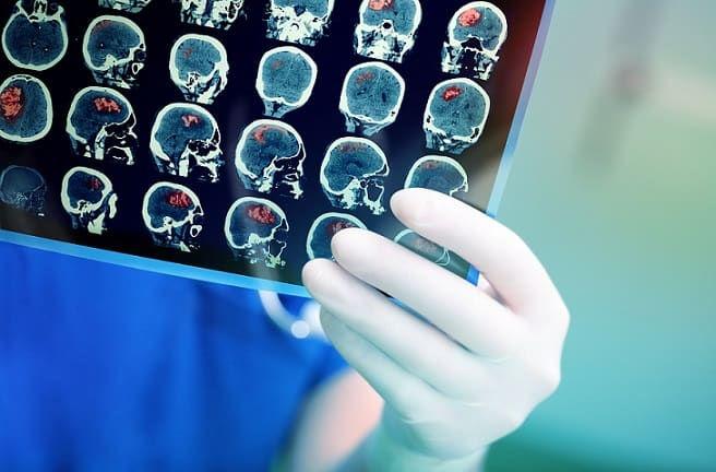 Consulta Neurologista / Neurocirurgiã