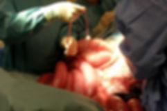 colic-surgery.jpg