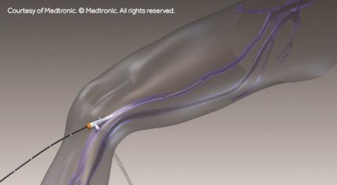 ClosureFast-Catheter-Insertion-Illustrat