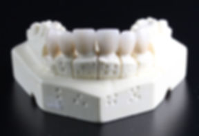 tooth-replacement-759929_edited.jpg