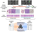 The DNA methylation landscape of glioblastoma disease progression shows extensive heterogeneity in time and space