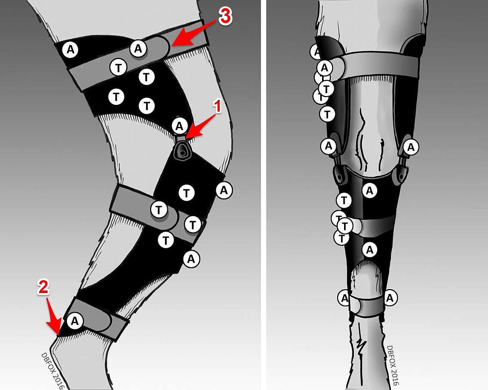 Kniebrace goherogo met aanduidingen