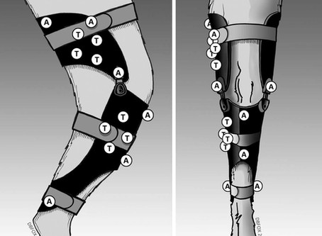 To (knie)brace, or not to (knie)brace