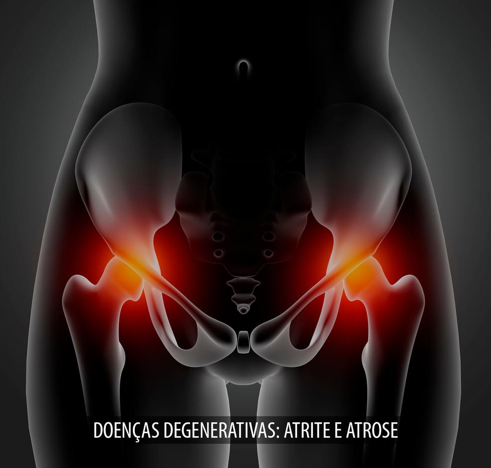 DOENÇAS_DEGENERATIVAS_ATRITE_E_ATROSE.j
