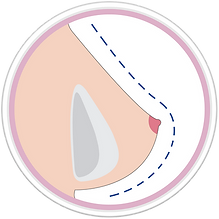 icono-Breast-2.png
