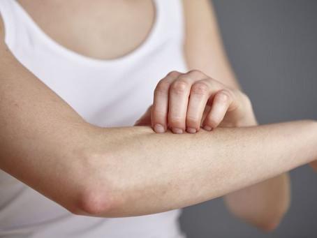 Healing Acne, Eczema & Psoriasis