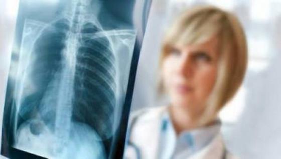 Akciğer Embolisi Tanısı ve Tedavisi
