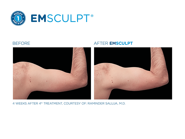 Emsculpt_PIC_Fb-social-media-plan-190528