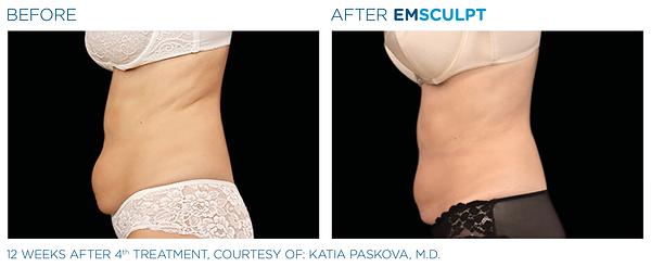 Emsculpt_PIC_Ba-card-female-abdomen-030_