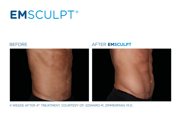 Emsculpt_PIC_FB-social-media-plan-190226