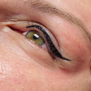 upper eyeliner rightafter procedure