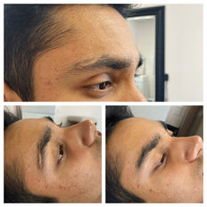 Eyebrow scar correction