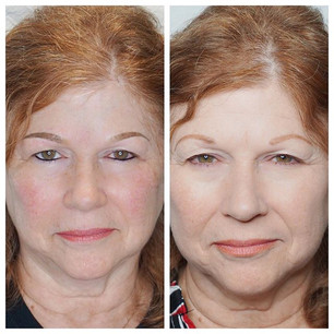 I love a transformation! ❤️. New Eyeline