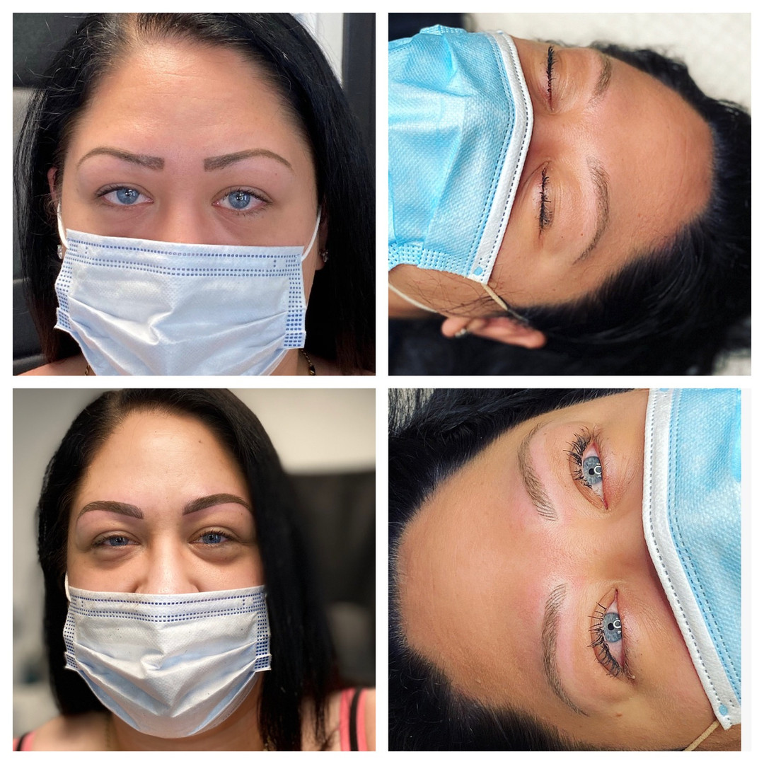 Before, after and healed combination Brows