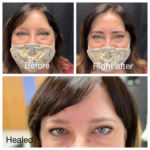 Healed Combo brows