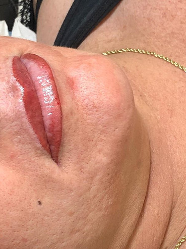 Lip line with ombre fill and Beauty Mark