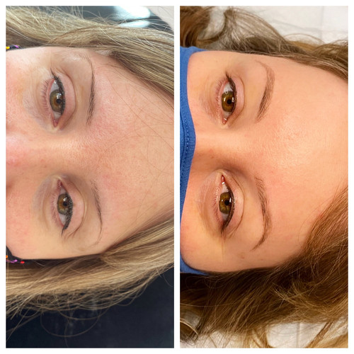 Before/healed Premier Signature Brows