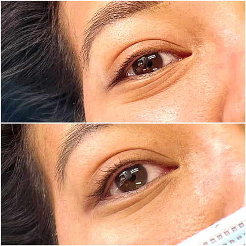 Upper lash enhancement