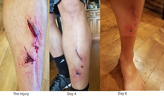 wounds healing pain relief fast recovery