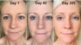 Skin Care x39 stemcell skin renewal