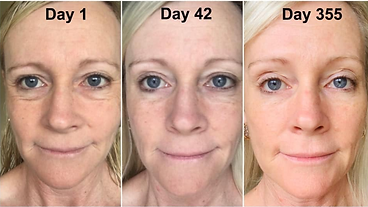 anti-aging, tighter skin, face lift, less dark spot