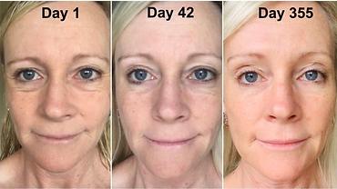 anti-aging, tighter skin, face lift, less dark spot