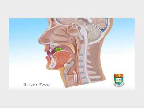 吞嚥困難 3 黏性食物 Sticky food