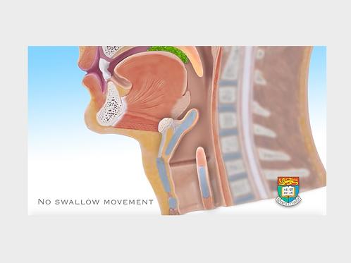 吞嚥困難 2 沒有吞嚥活動 No swallow movement