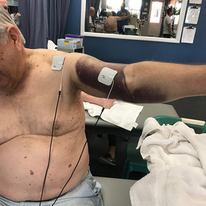 Bicep Rupture Hemorrhage