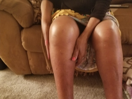 What's the deal with swollen legs?