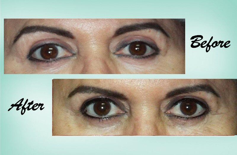 Eyeliner 04 Collage