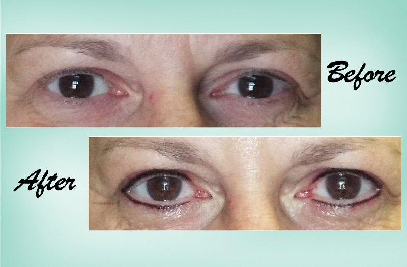 Eyeliner 02 Collage