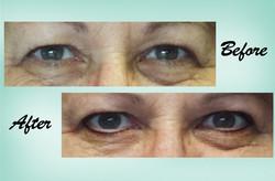 Eyeliner 06 Collage