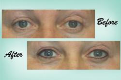 Eyeliner 08 Collage