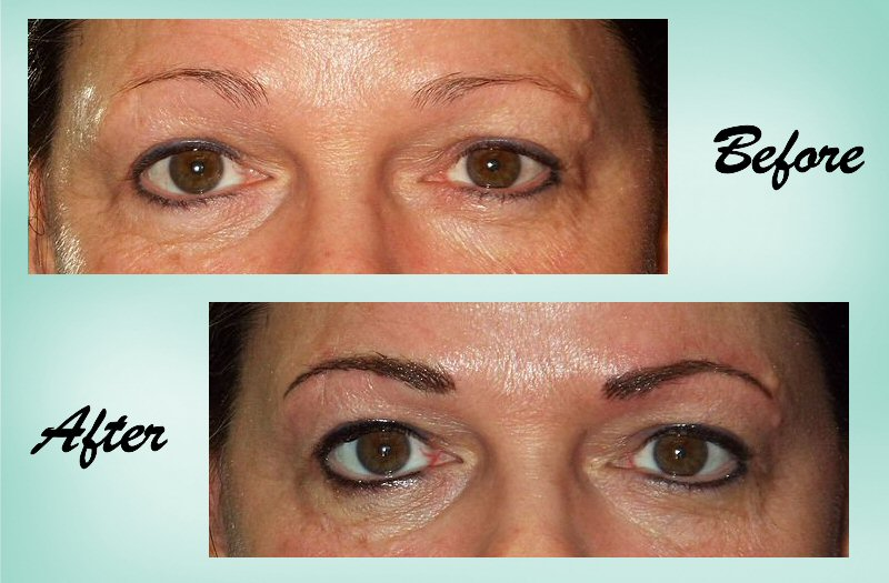 microblading 03 Collage