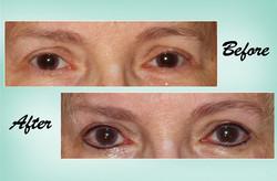 Eyeliner 03 Collage