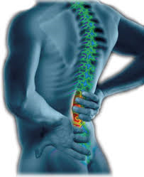 back pain.png