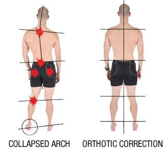 collapsed arch orthotic correction.jpg