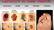 SKIN CANCERS of the FEET