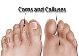corn callus.png