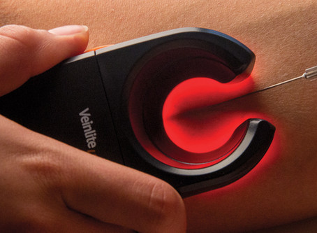 NIR vs. Ultrasound vs. Transiluminación para realizar accesos venosos.