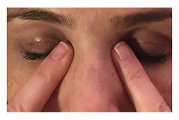 פרופ׳ מיכאל ויסבורד מומחה גלאוקומה | איך שמים טיפות עיניים