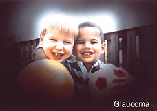 פרופ׳ מיכאל ויסבורד מומחה גלאוקומה | ראיית חולה גלוקומה