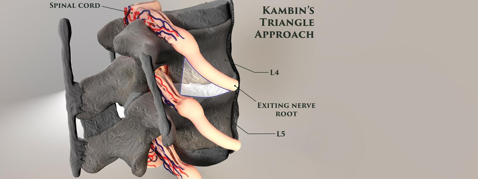 Kambin's Triangle